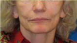 Before Corrective Fillers