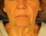 Before non-surgical Face Lift