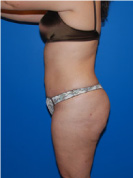 After Body Liposuction