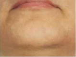 After Laser Hair Removal