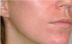 After Fractional CO2 Laser Resurfacing
