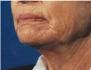 Before Fractional CO2 Laser Resurfacing
