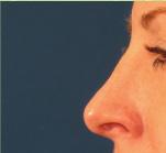 After facial surgery