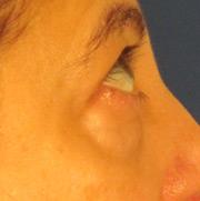 Before facial surgery