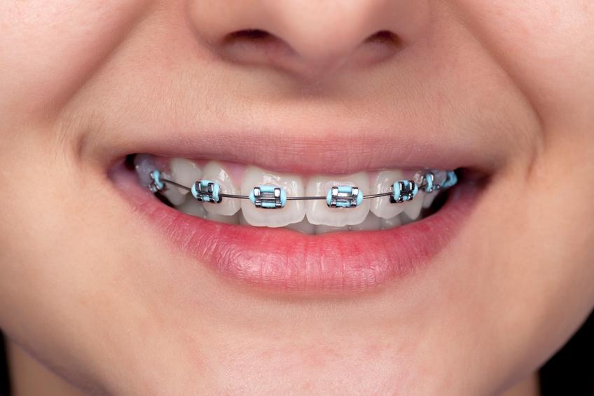 Metal Braces - American Orthodontics Master Series