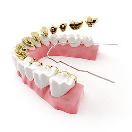 Incognito Orthodontics Brea
