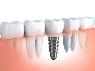 Tooth Implants Dee Why