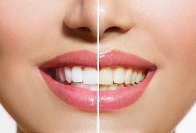a before and after of a teeth whitening procedure | Teeth Whitening Dee Why NSW