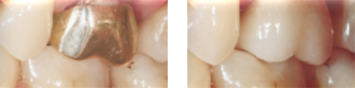 Before & After All Ceramic Crowns