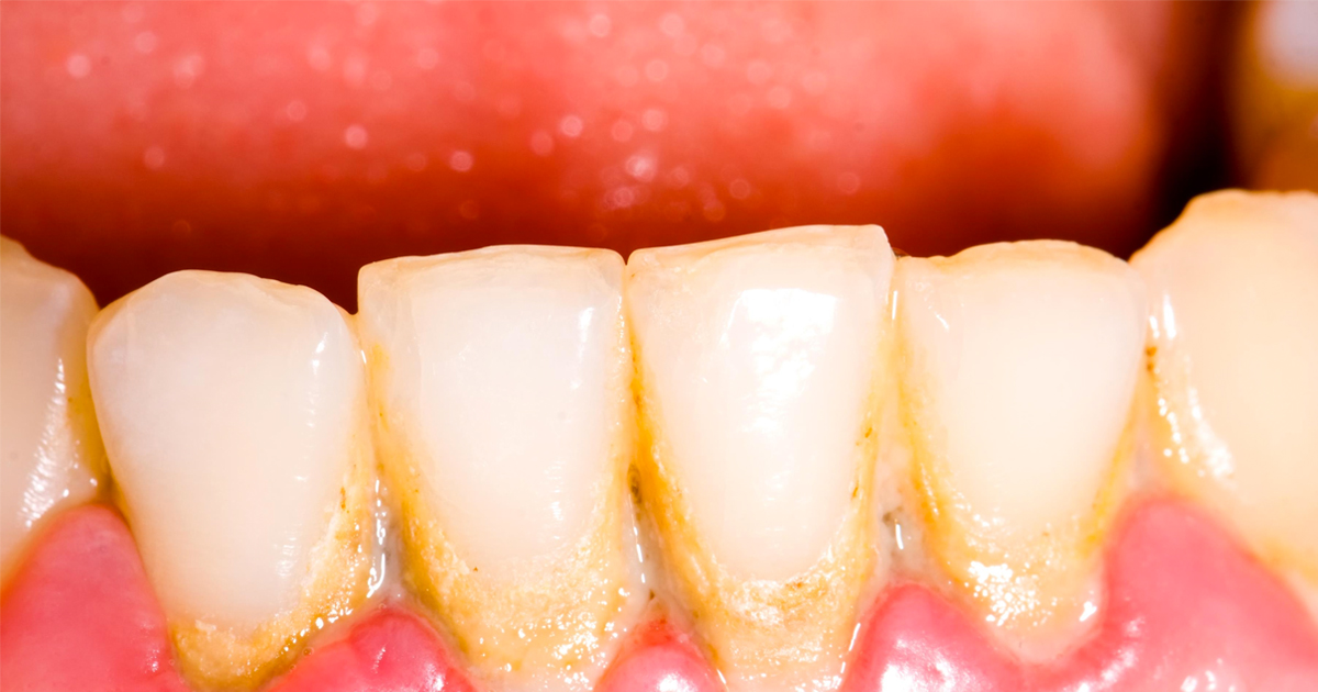 Reasons why you should visit your dentist regularly!