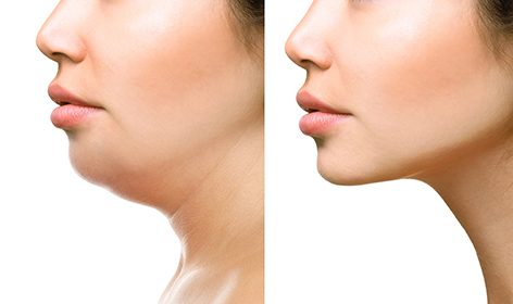 Kybella® Injection