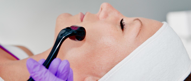 Microneedling treatments using dermaroller
