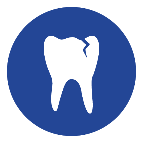 Cracked Tooth Repair
