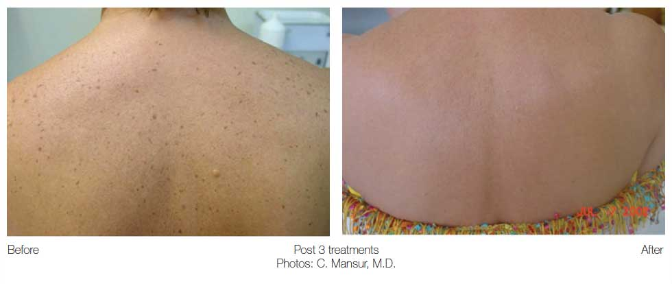 before and after sun spots on the back