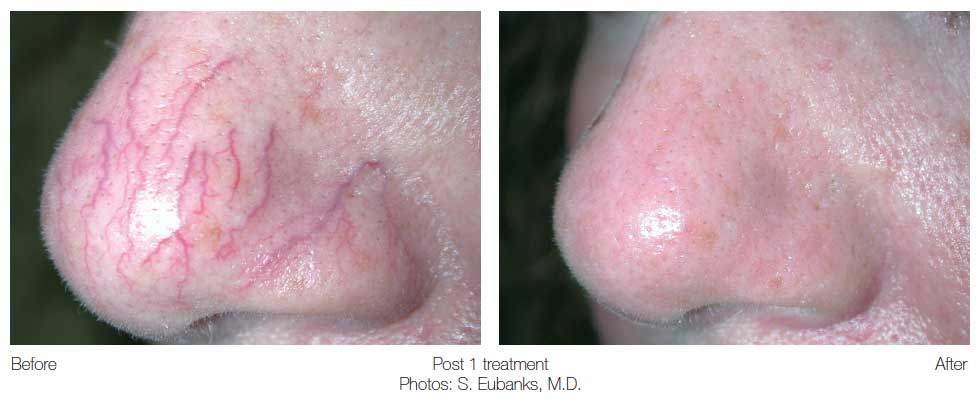 before and after facial vein treatment on nose