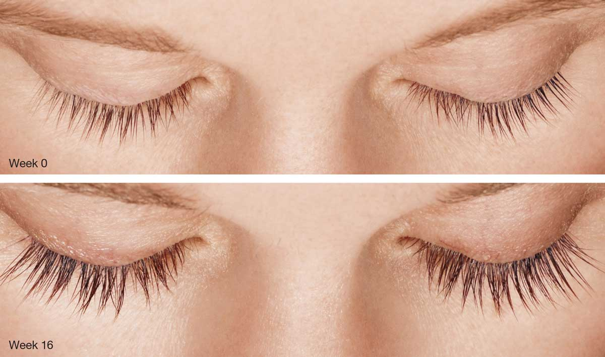 latisse before and after lashes
