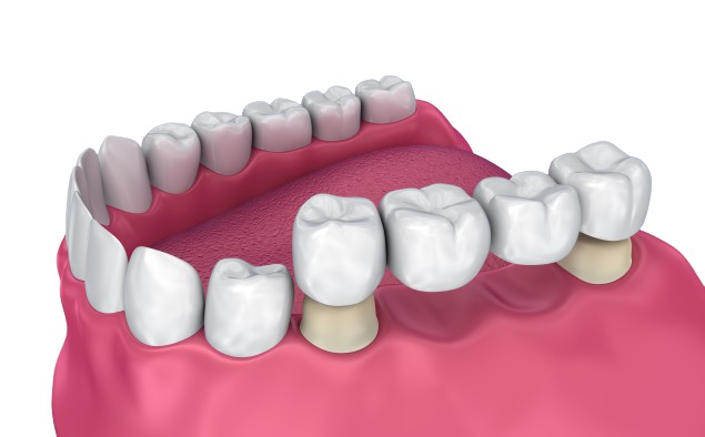 Multiple teeth replacement