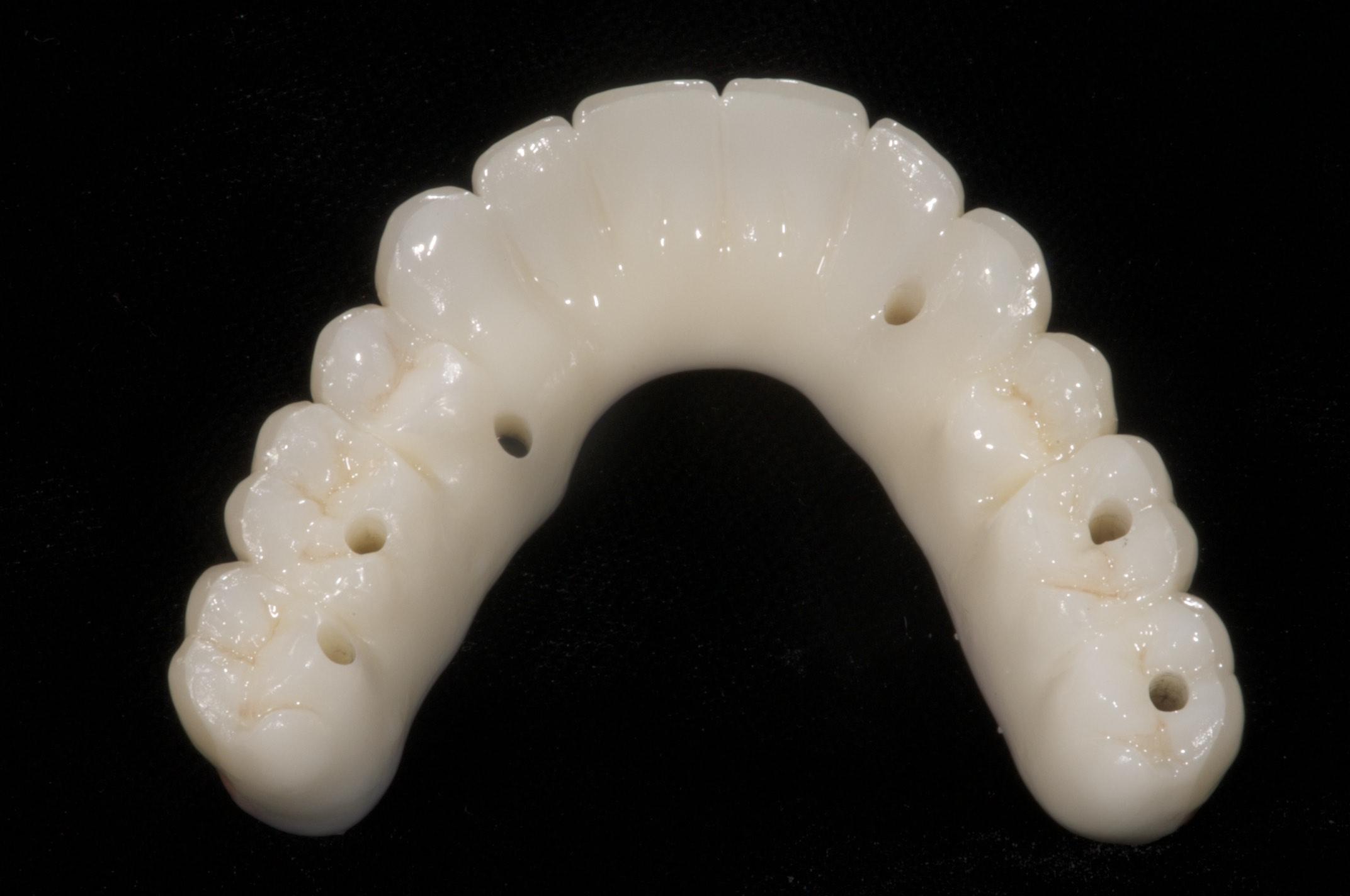 prosthodontic option for full implant bridges