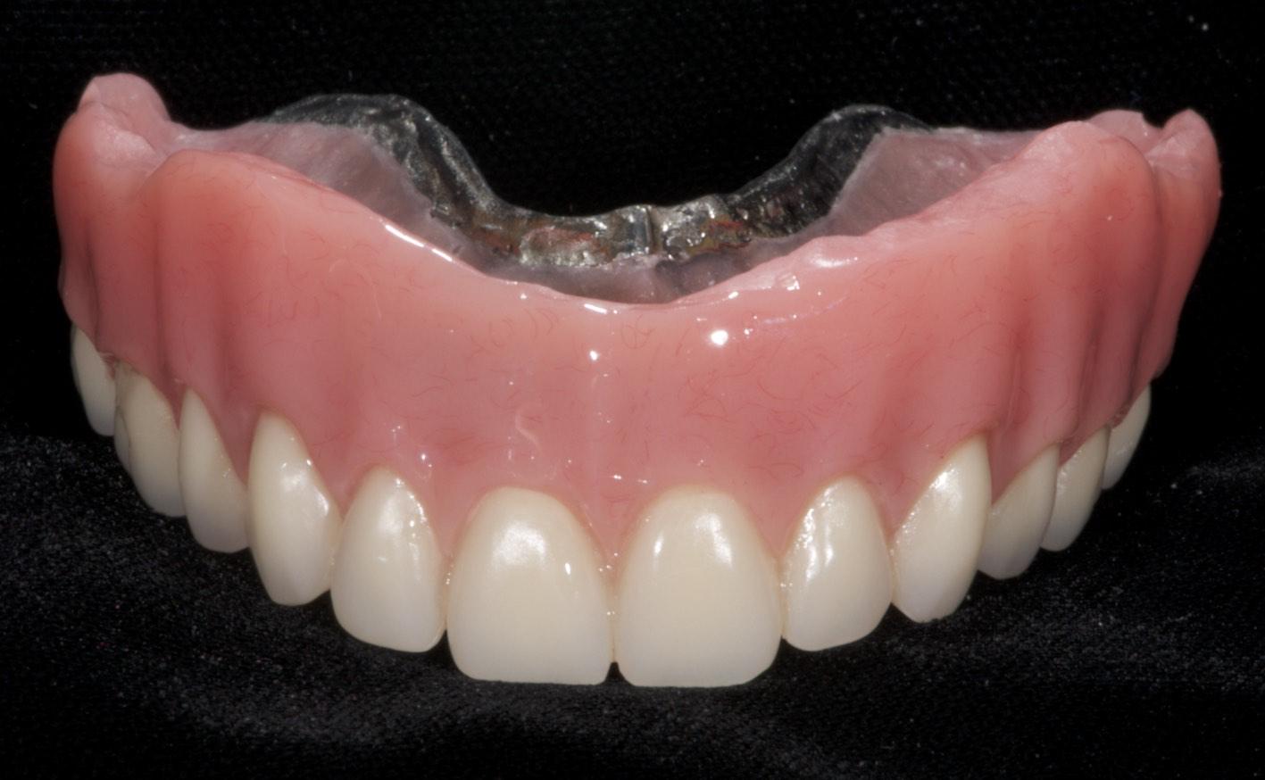 Top dentures