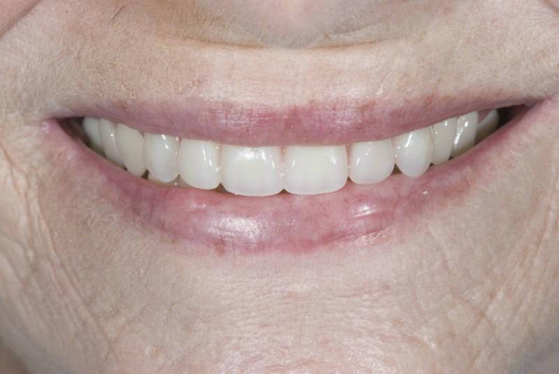 Patient smiling with dentures