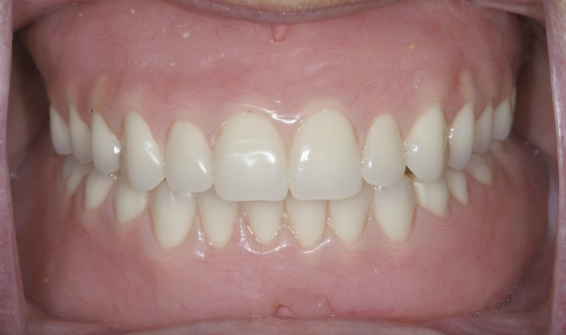 Dentures in patients mouth