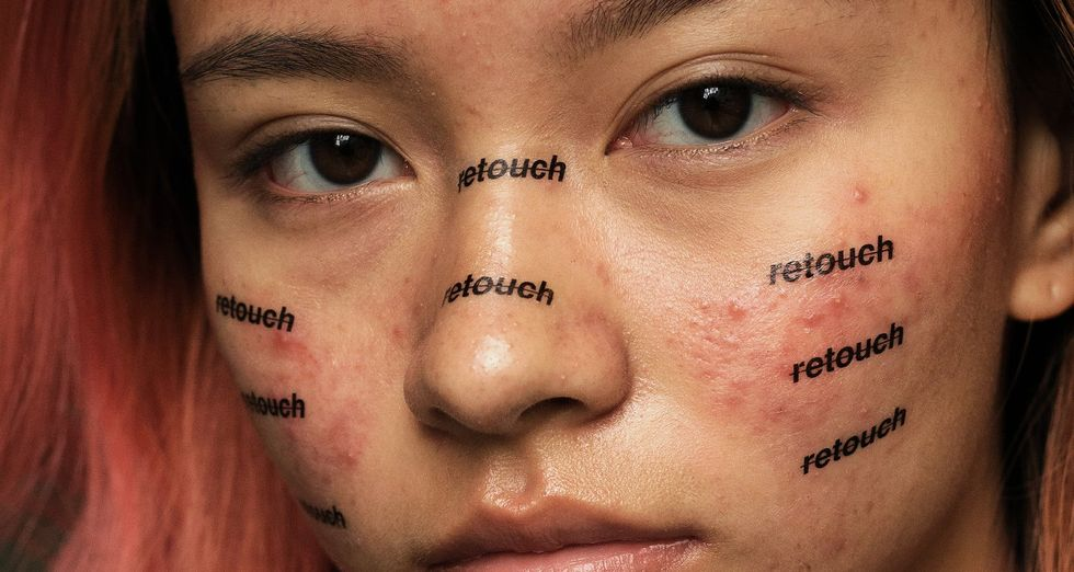 "woman with acne and ""retouch"" words written on her face"