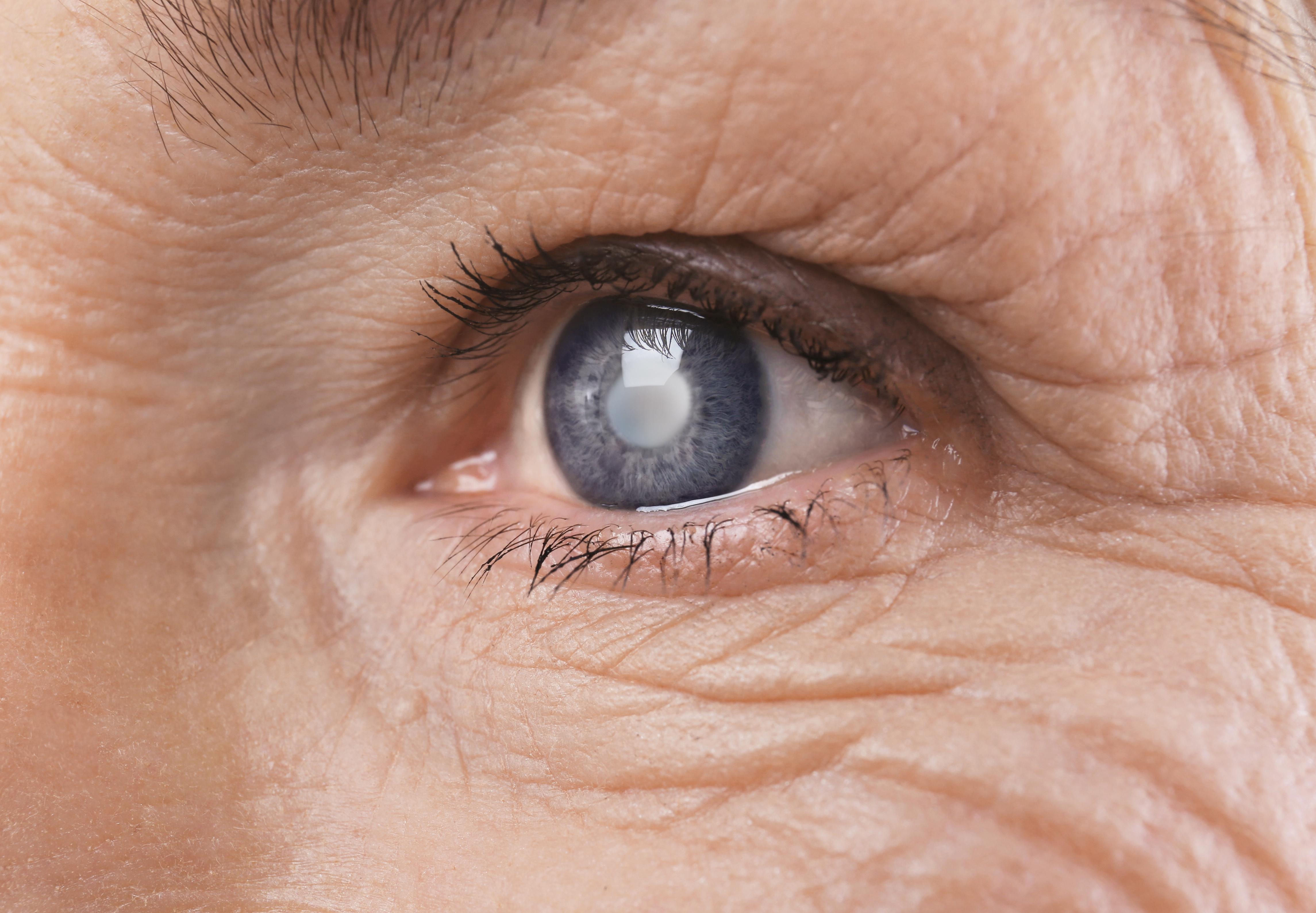 cataract example chico eye center