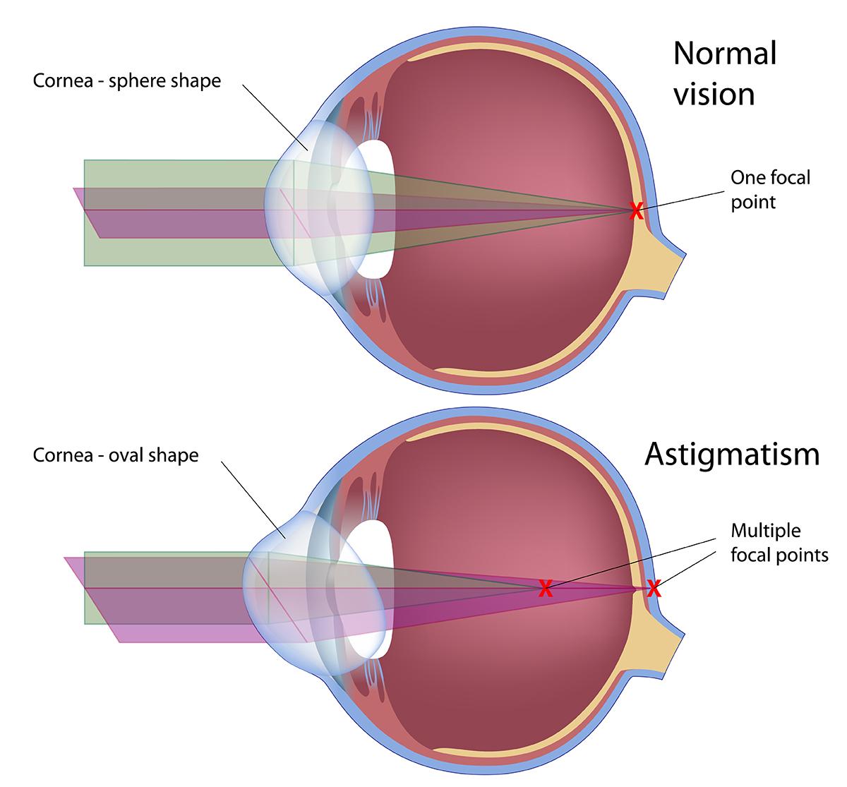 astigmatism example illustration