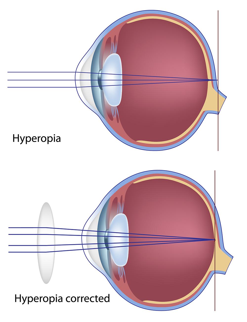 hyperopia farsightedness illustration
