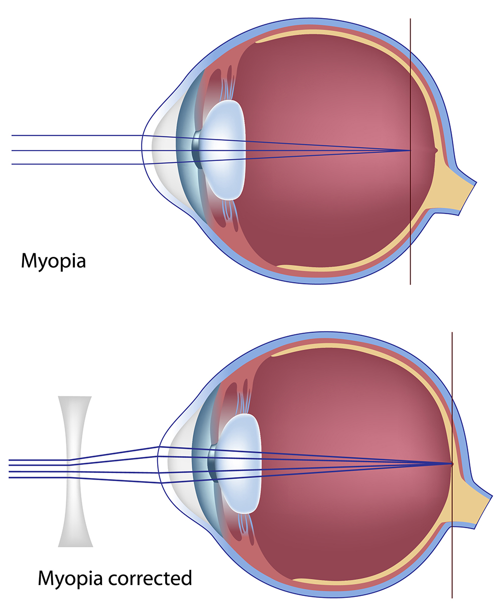 myopia nearsightedness