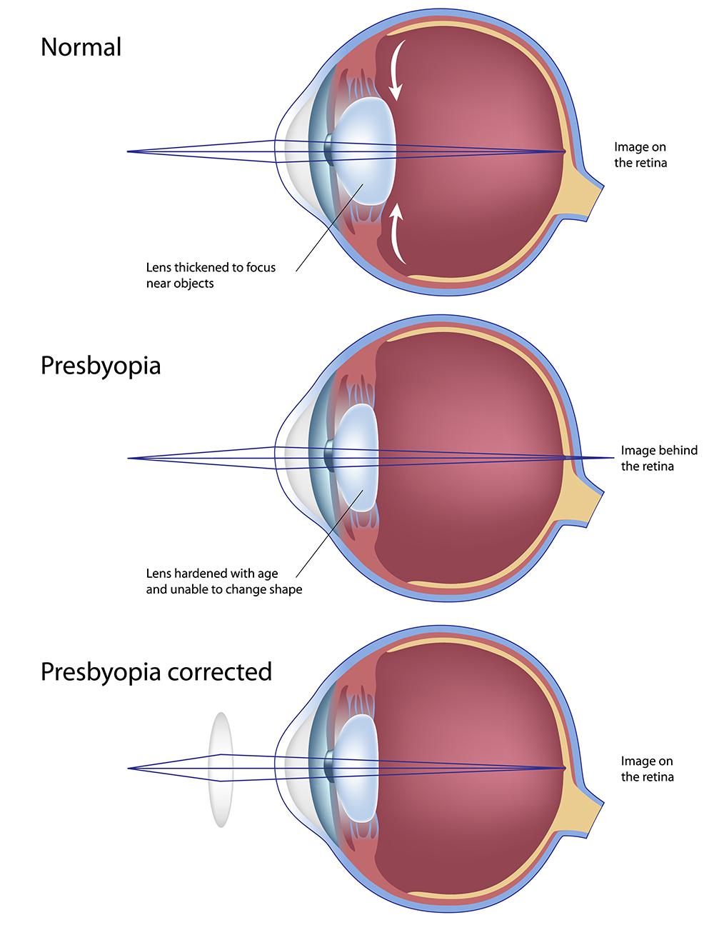 presbyopia disorder illustration