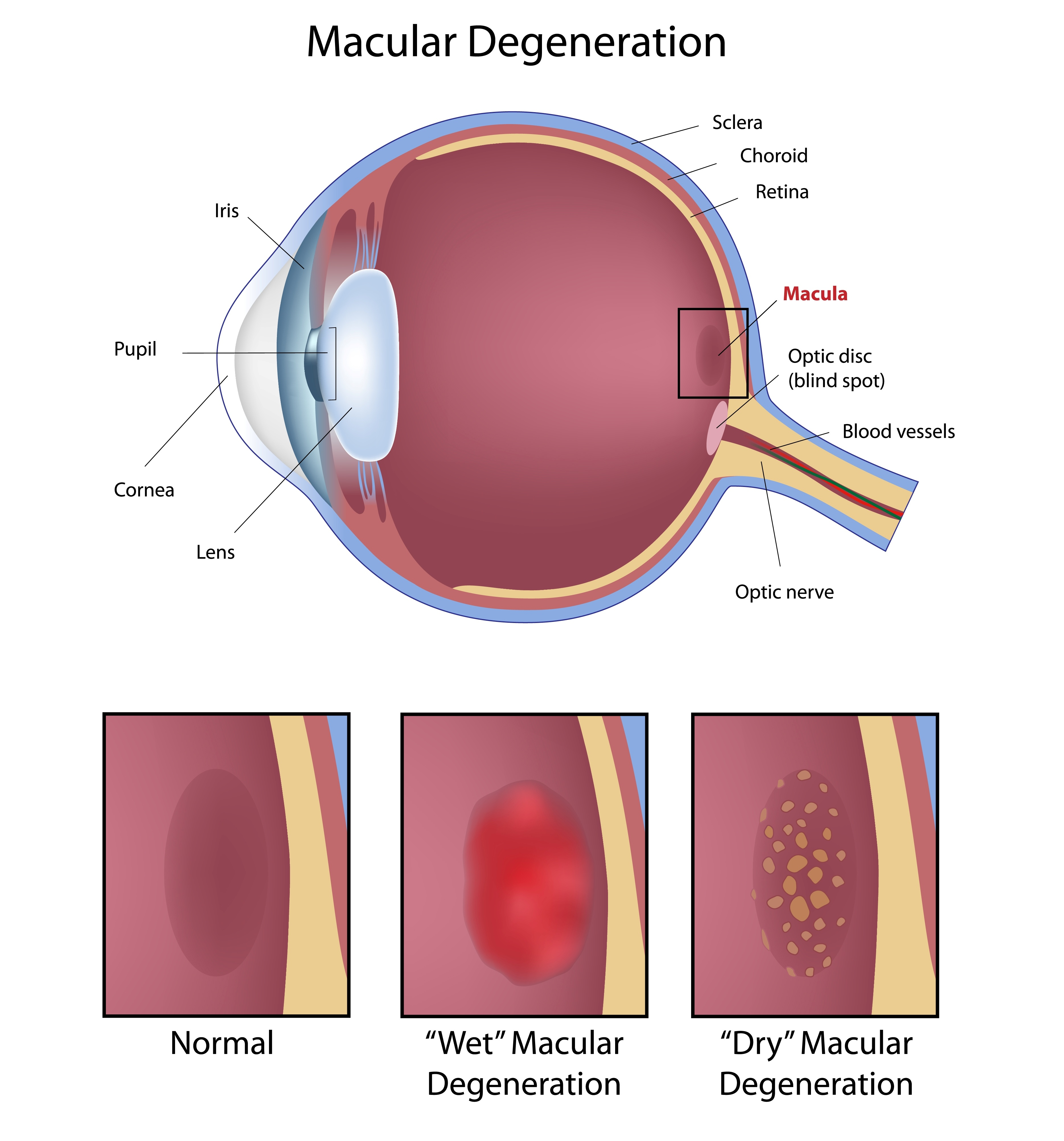 macular degeneration illustration