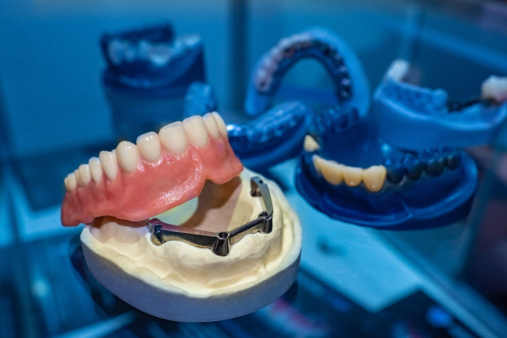 Options for dentures