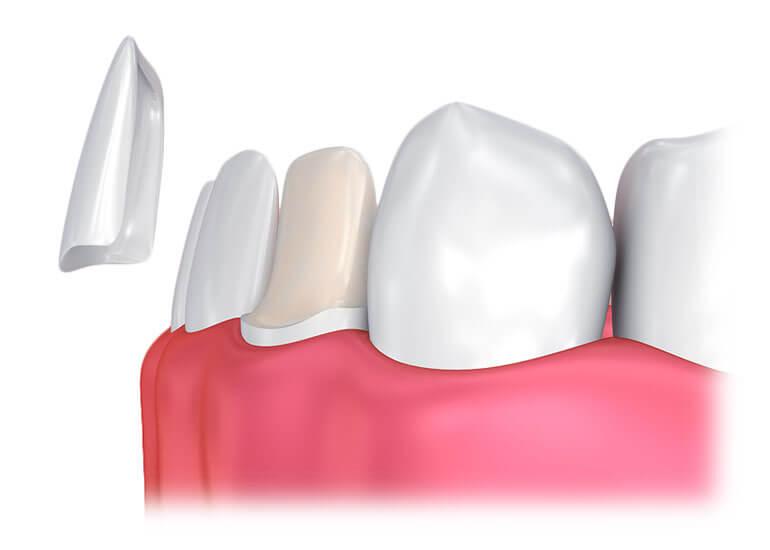 faccette dentale
