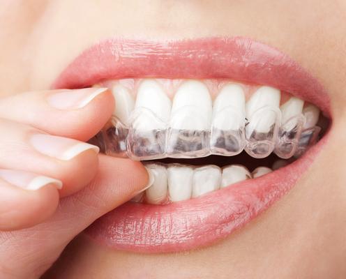 dentista all'estero