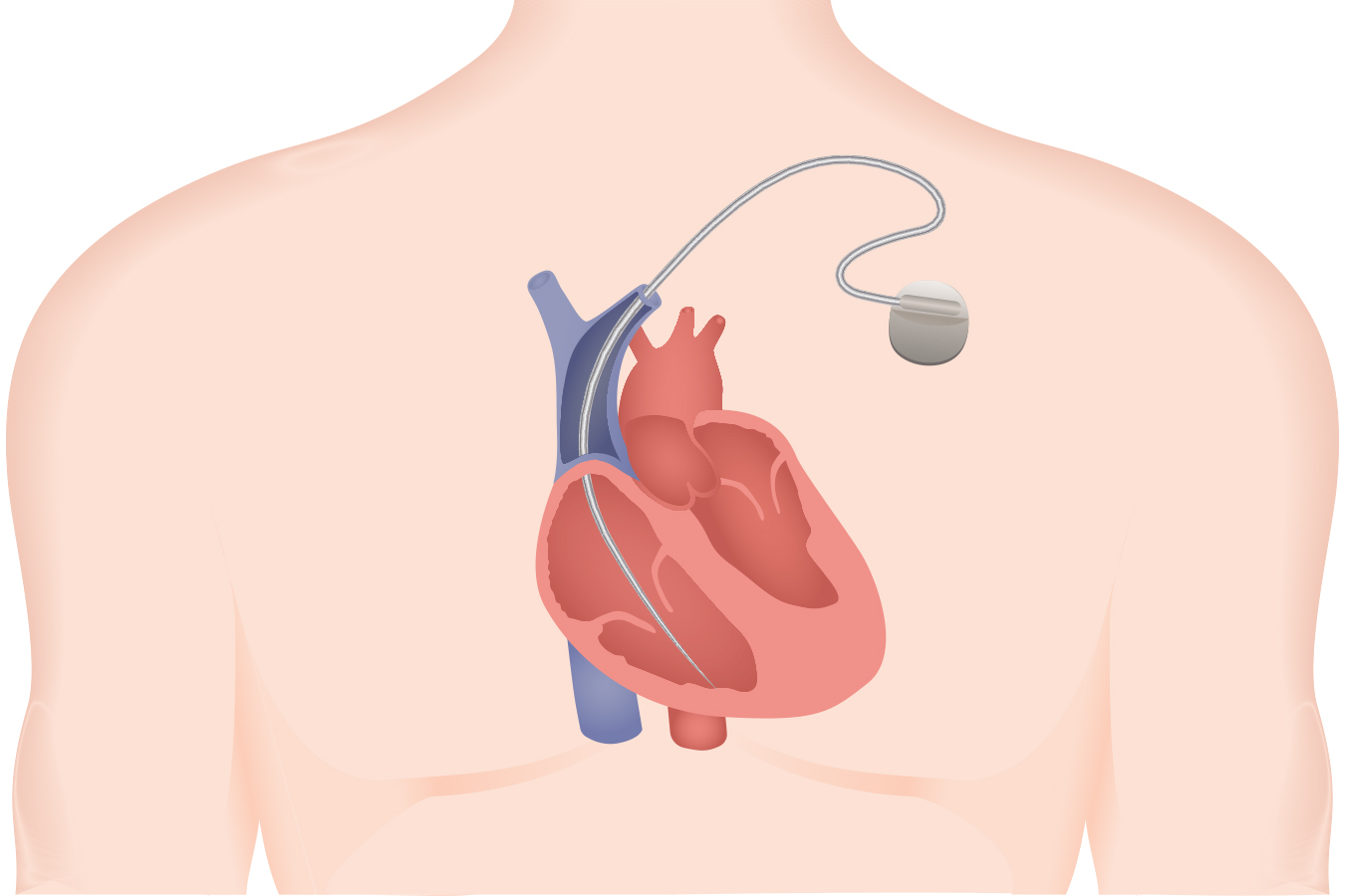 Heart Device Defect Lawsuit