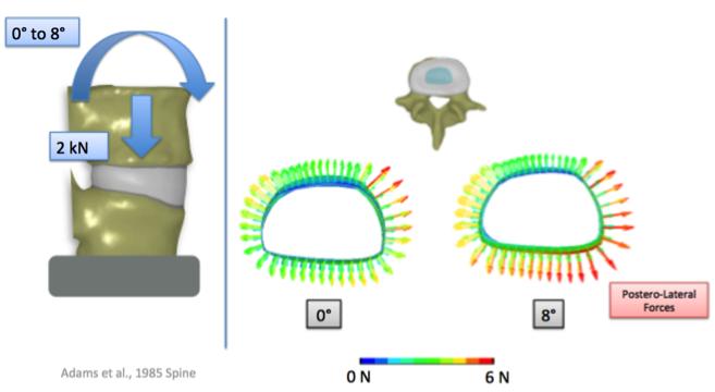 Disc Herniation Mechanism