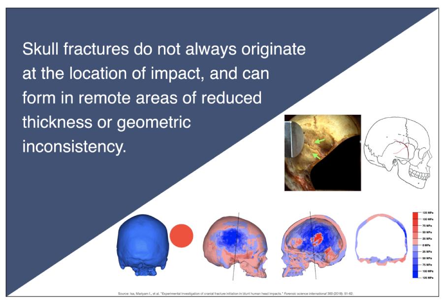 Skull Fracture Origination