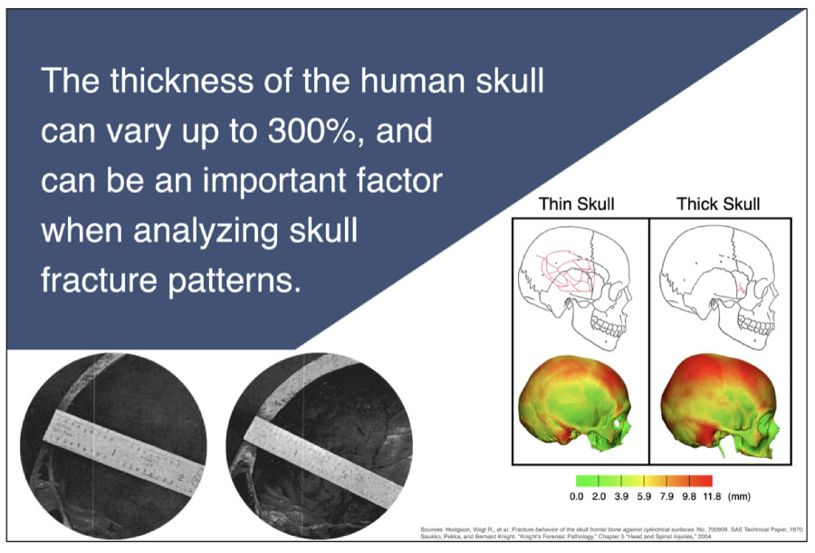 Disparate Patterns of Skull Fracture