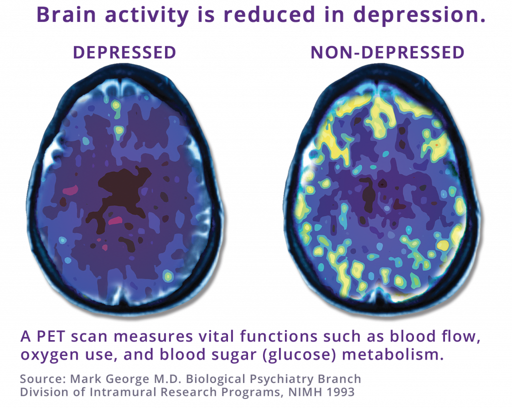 PET scan comparing depressed brain to non-depressed brain