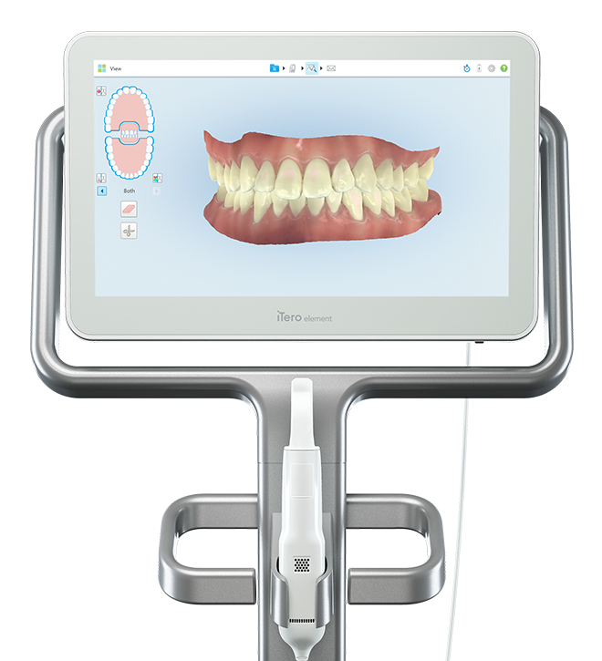 iTero scanner with a 3D image of teeth