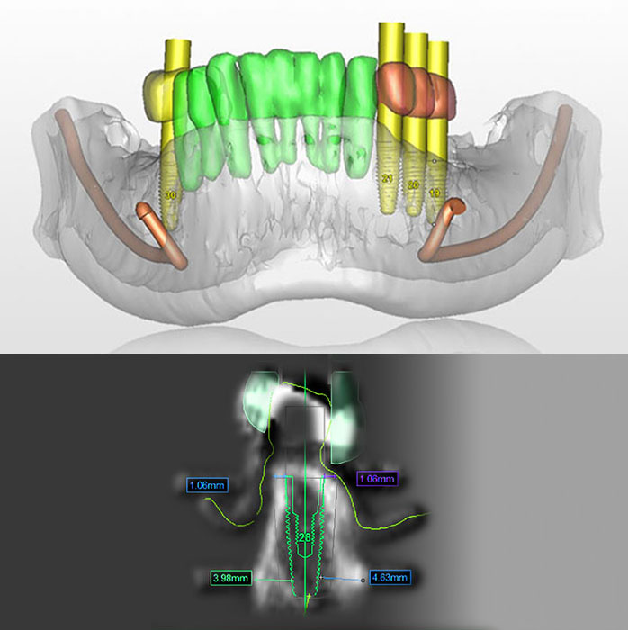 colorful 3D image of teeth