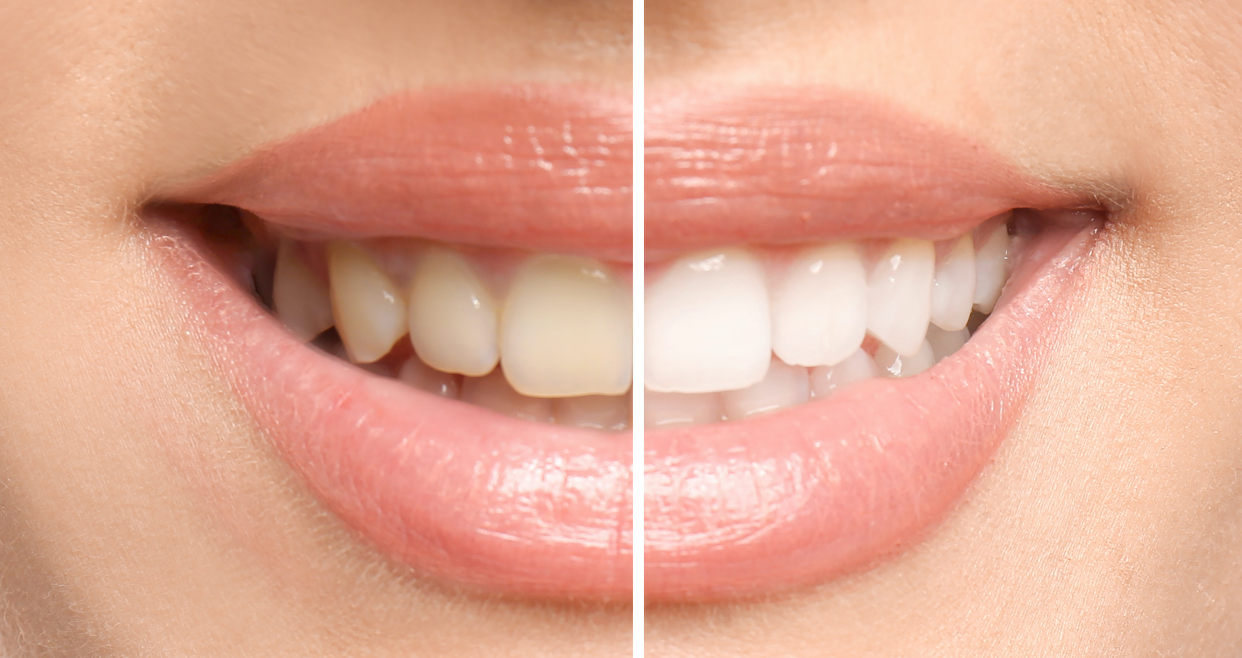 How Teeth Whitening Works – Everything You Need To Know