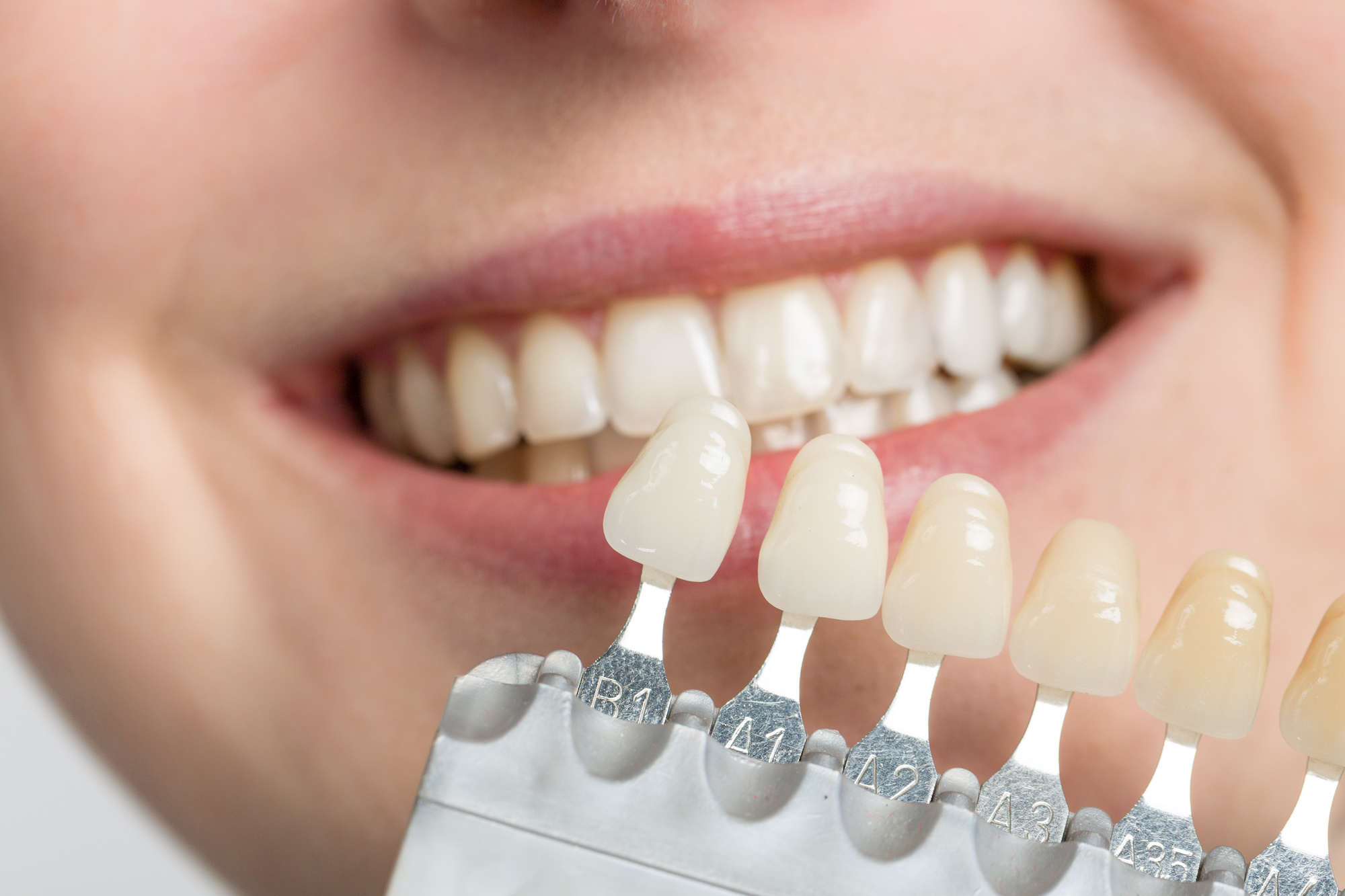 How Do Veneers & Lumineers Damage My Teeth? Are They Bad For My Oral Health?