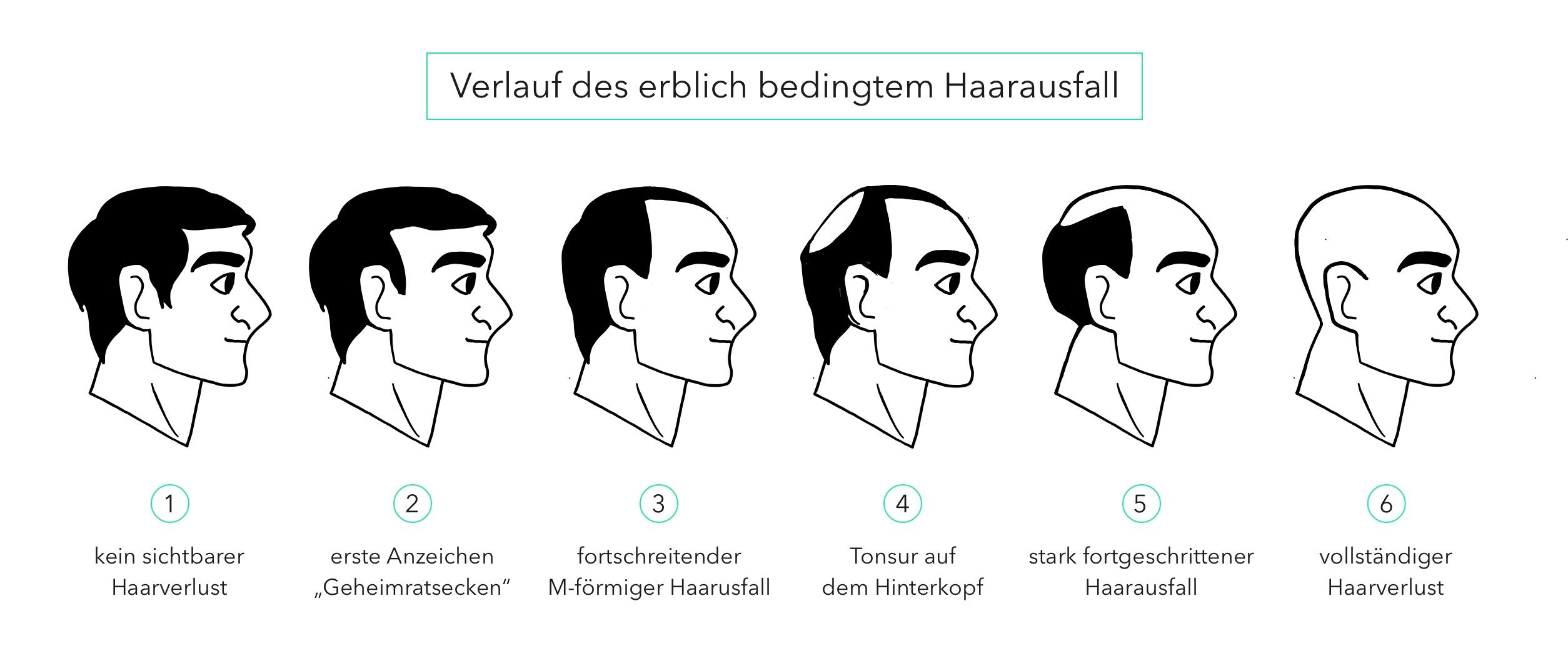 Der Verlauf des erblich bedingten Haarausfalls in sechs Stufen in Bildform dargestellt.