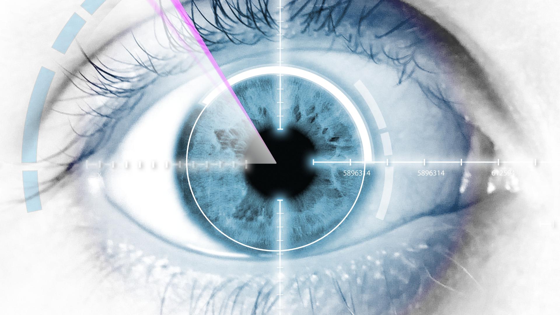Chirurgia refractiva
