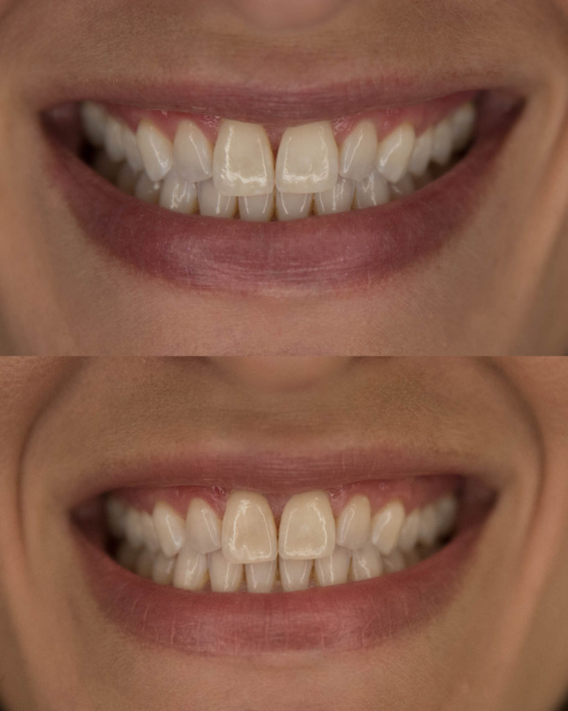 Laura Behnke The Life Actually Company Smile Brilliant Teeth Whitening Review
