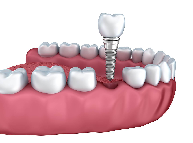 A dental implant representation
