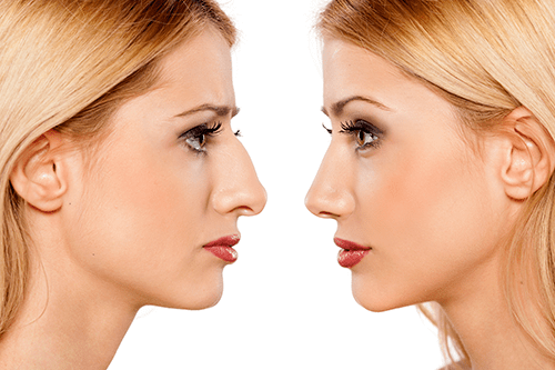 Delaying a rhinoplasty could mean more trouble than you think.