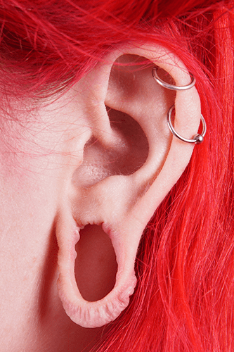 Earlobe repair from large hole placement
